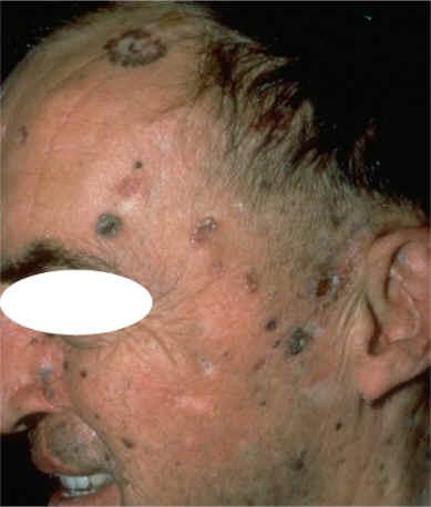 Imgenes clnicas de tipos de carcinoma basocelular