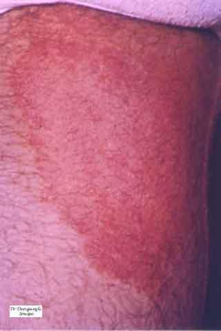 Dermatophytie