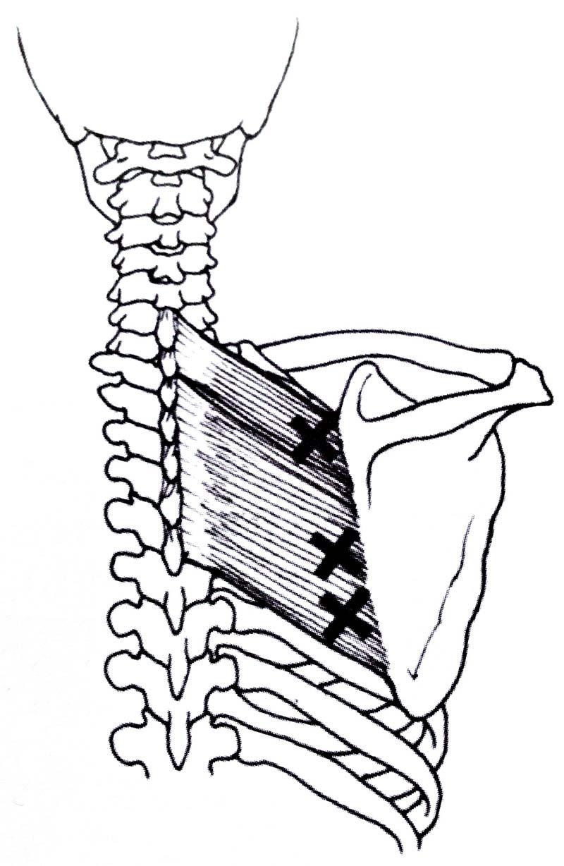 上背痛 菱形肌勞損 | 優1周 - UWeekly