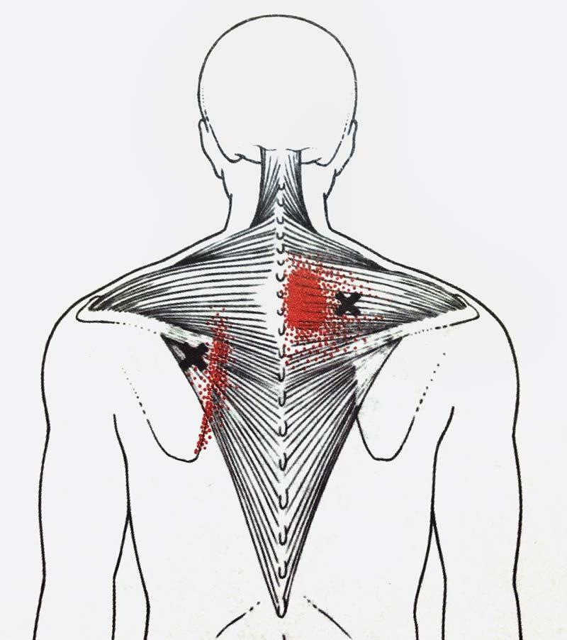 上背痛 中斜方肌勞損 | 優1周 - UWeekly