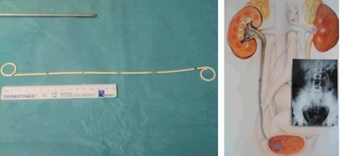 Dispositif mis en place (sonde double J) dans le cas d'une pyélonéphrite obstructive