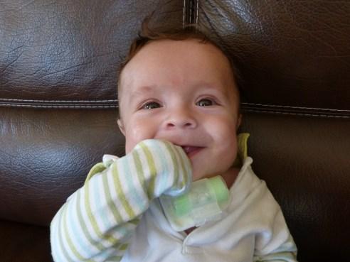 bébé trachéotomie vacterl