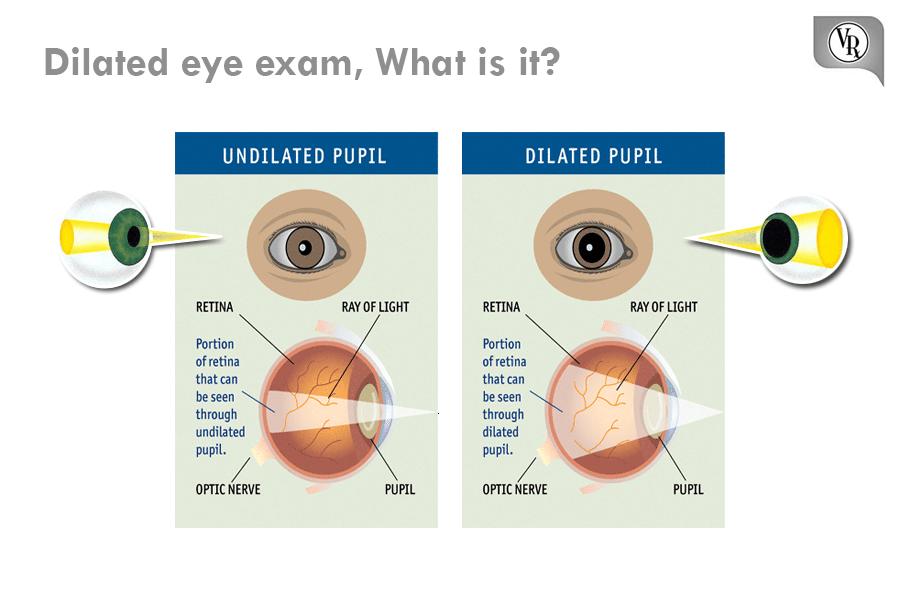 Dilated eye exam What is it? A dilated vision exam allows ...