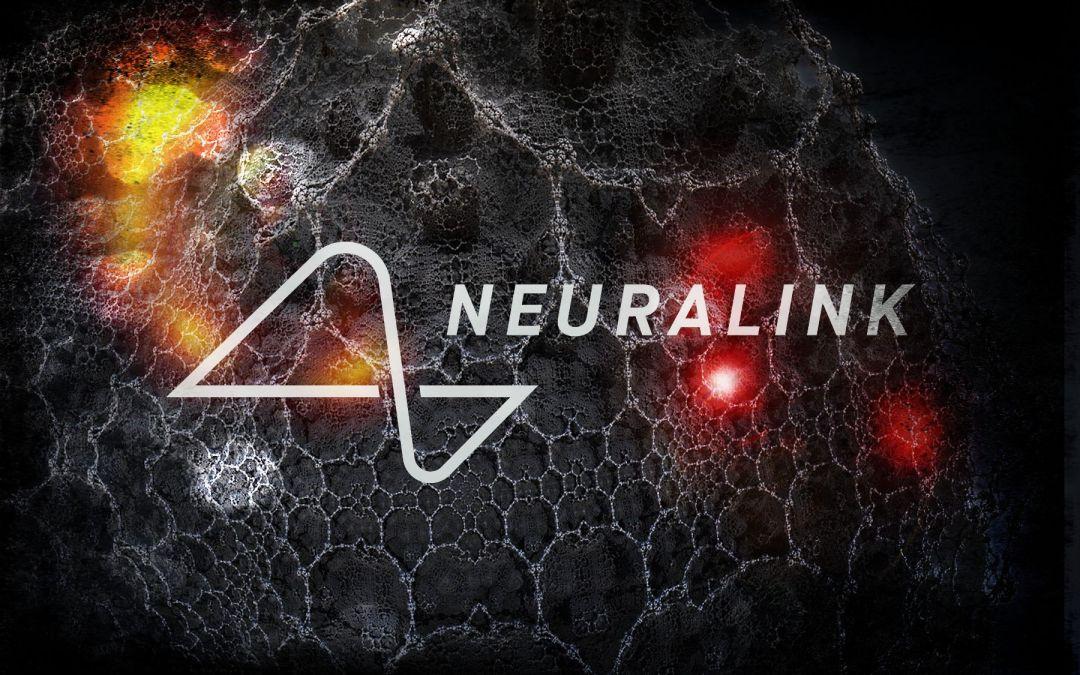 Neuralink: il progetto di connettere il cervello umano ai computer