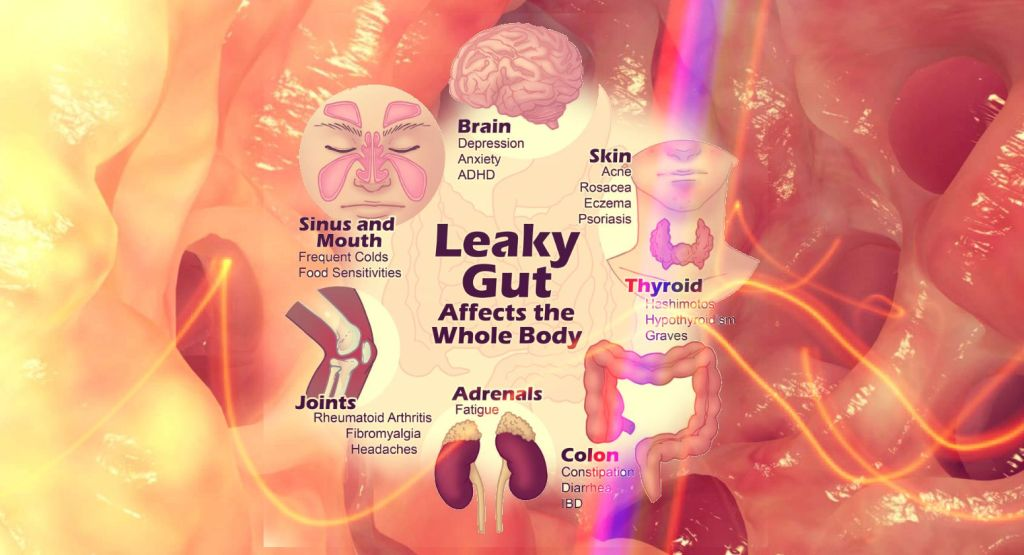 leaky-gut-syndrome-psichiatria