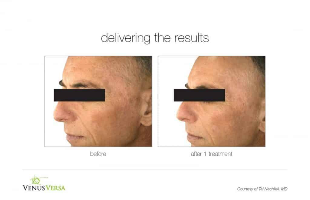 image of an aged man before and after photorejuvenation