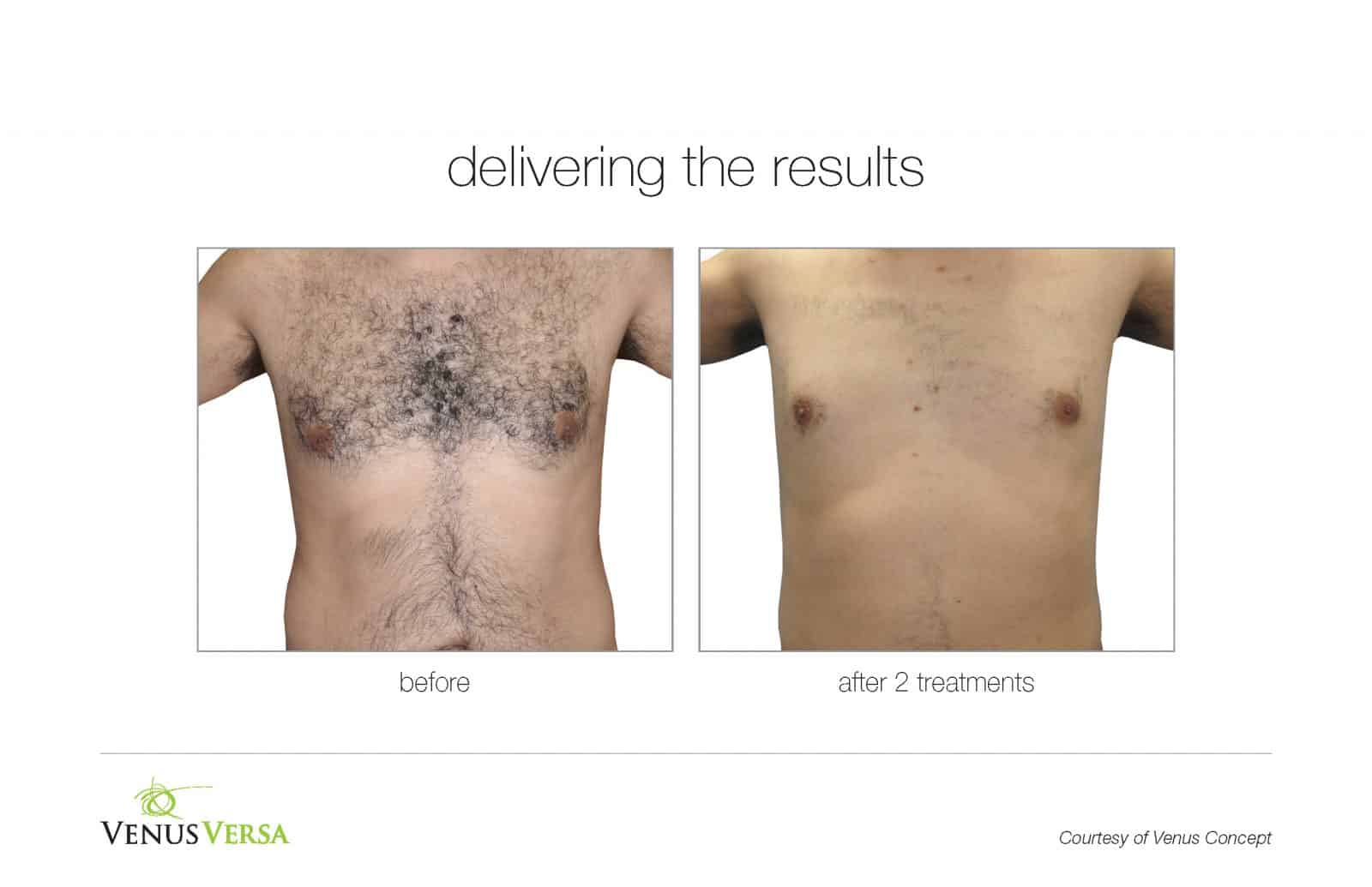 venus versa ba hair removal venus concept