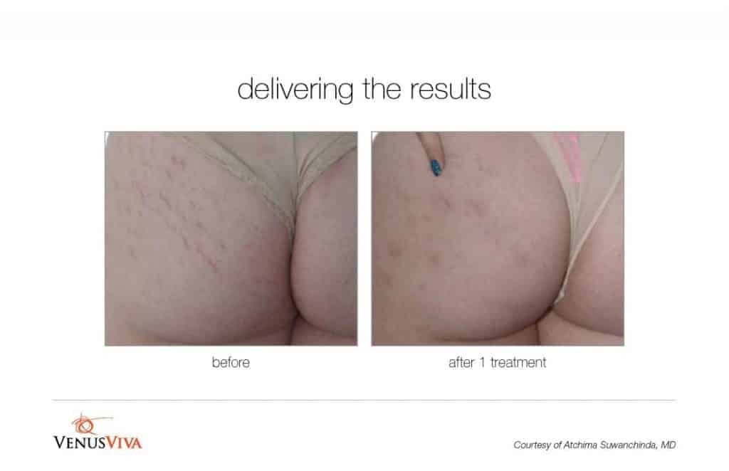 image of buttocks before and after skin resurfacing for stretchmarks