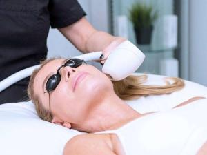 Top Clients Questions About IPL Photorejuvenation Treatments