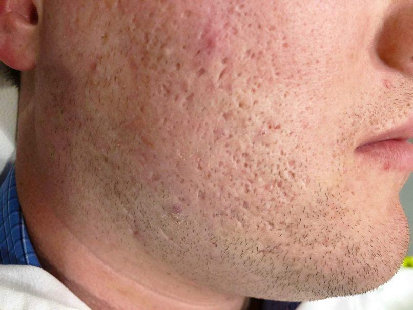 male side beard with skin damages