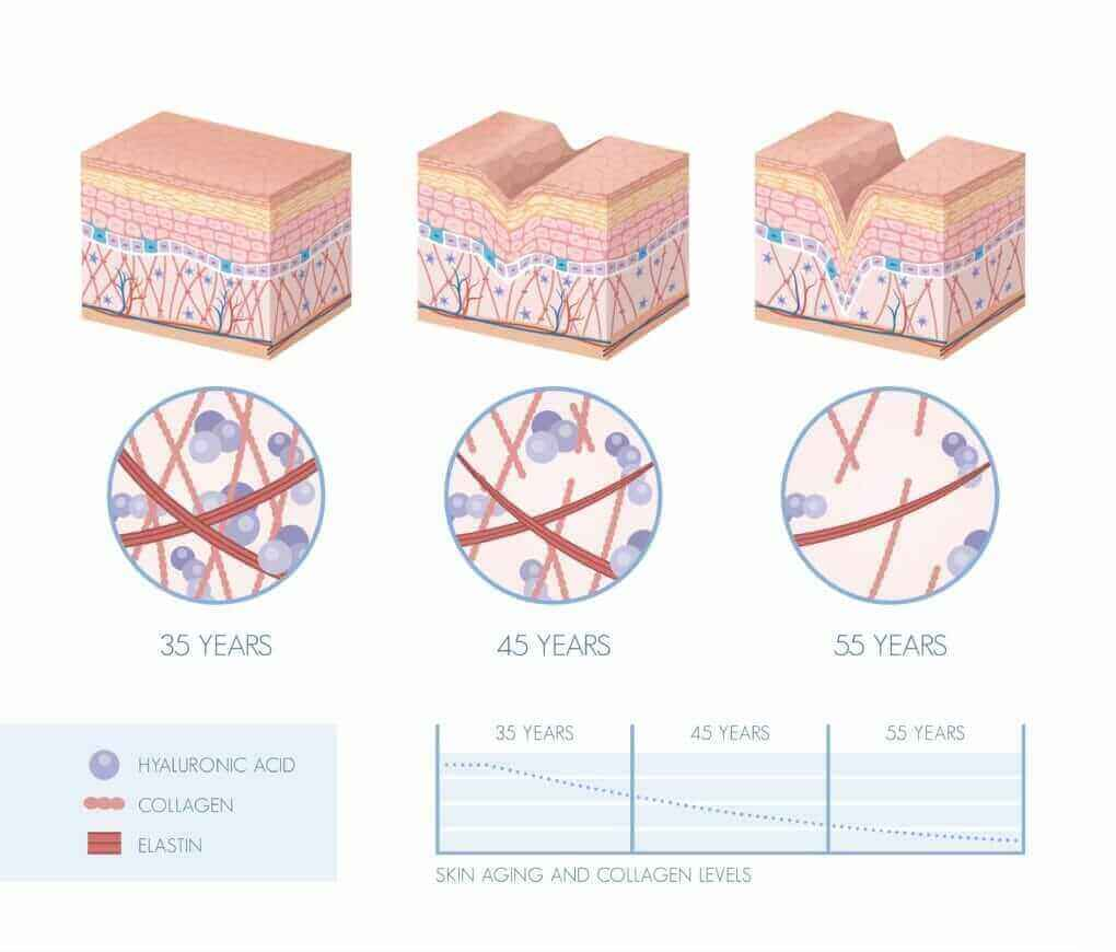Skin Aging stages diagram