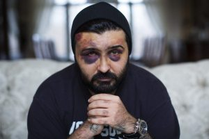 reza-mokhtarian with bruises
