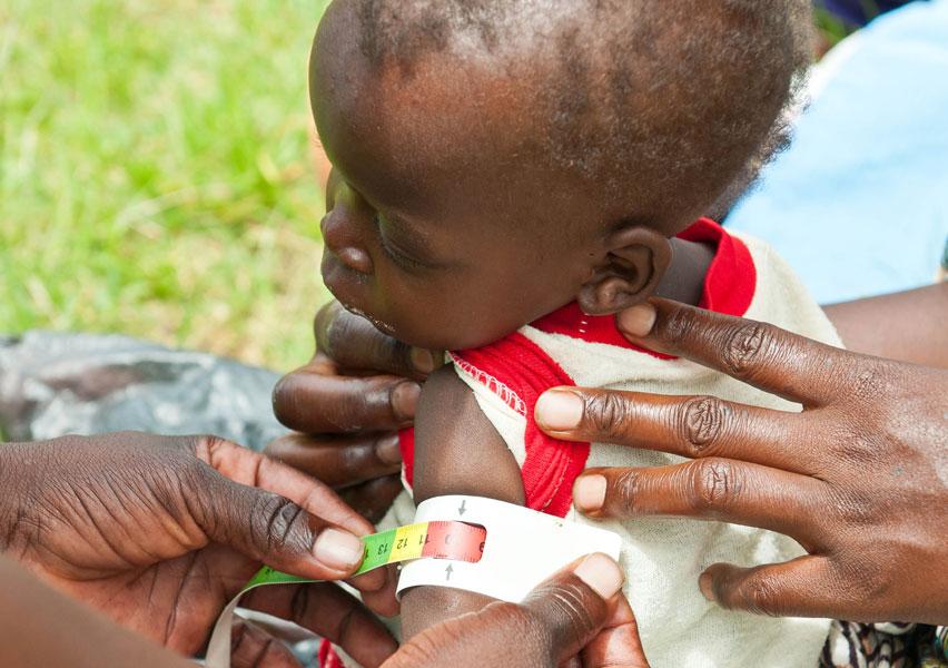 Malnutrition Definition | Valid Nutrition