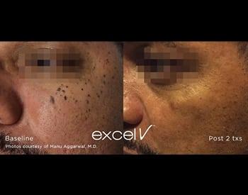excel V™ Laser | Valley Skin Institute