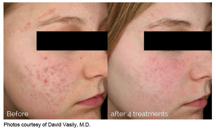 Laser Treatment of Acne Scars
