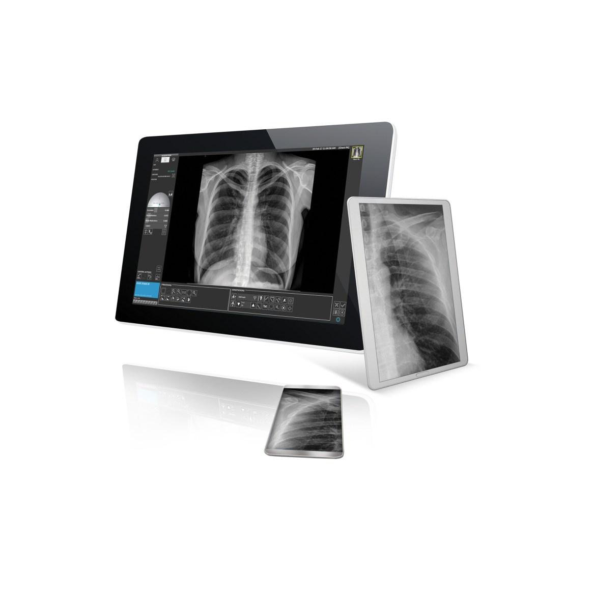 Digital Radiography imaging system