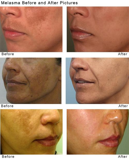 Laser Removal Hair Lip Upper