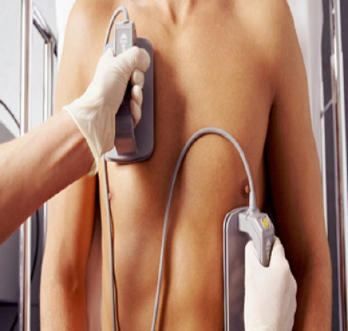 Sudden cardiac death in young athletes: Facts, challenges, recommendations