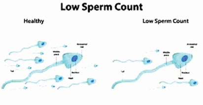 common and cold quality Sperm