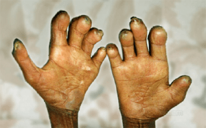 People living with leprosy in Borno, Yobe seek govt. assistance