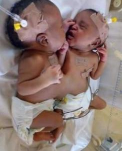 FG takes over medical expenses of Bayelsa conjoined twins, flies them to Yobe hospital