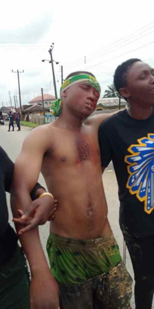 Update: Photo of a gun shot victim in Bayelsa