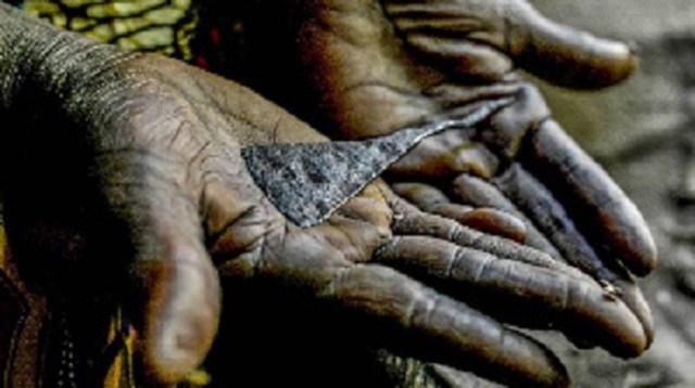 Female genital mutilation kills 12-year-old in Egypt