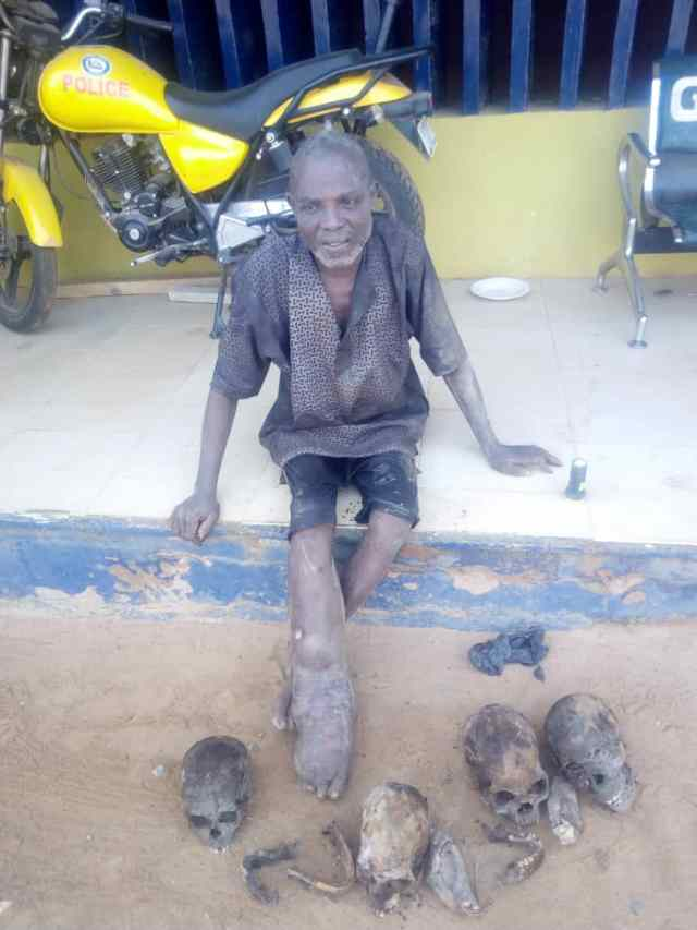 Man, 55, arrested with four human skulls, other body parts in Ogun