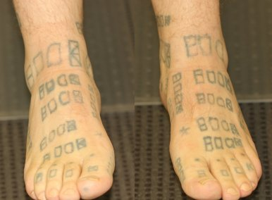 Amateur Feet Tattoos Before Laser Removal