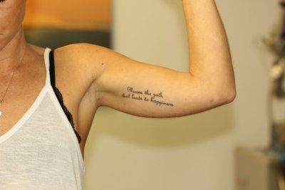 Black Inner Bicep Text Tattoo Before Laser