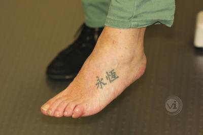 Black foot tattoo after laser removal