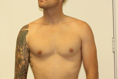 Chest Tattoo After Laser