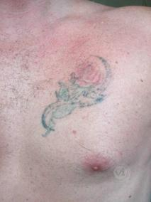 Coloured rose chest tattoo after laser fade