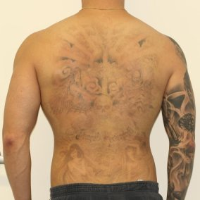 Full Back Tattoo After 3 Laser Treatments