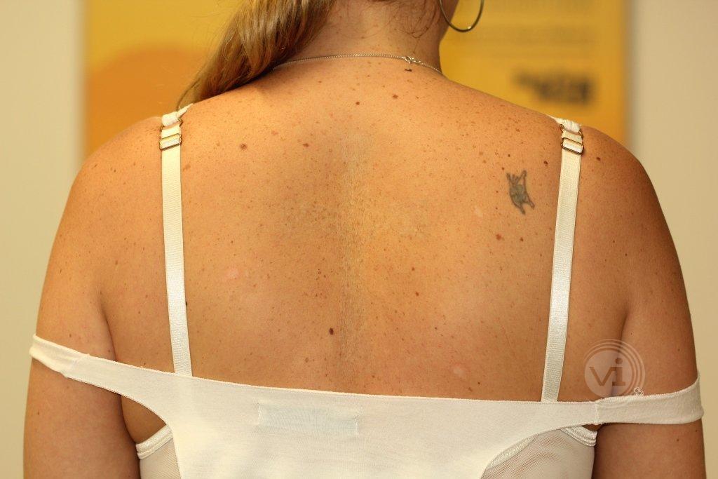 Big Black Tattoo Removal