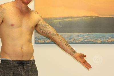 Large full inner sleeve tattoo after laser fade