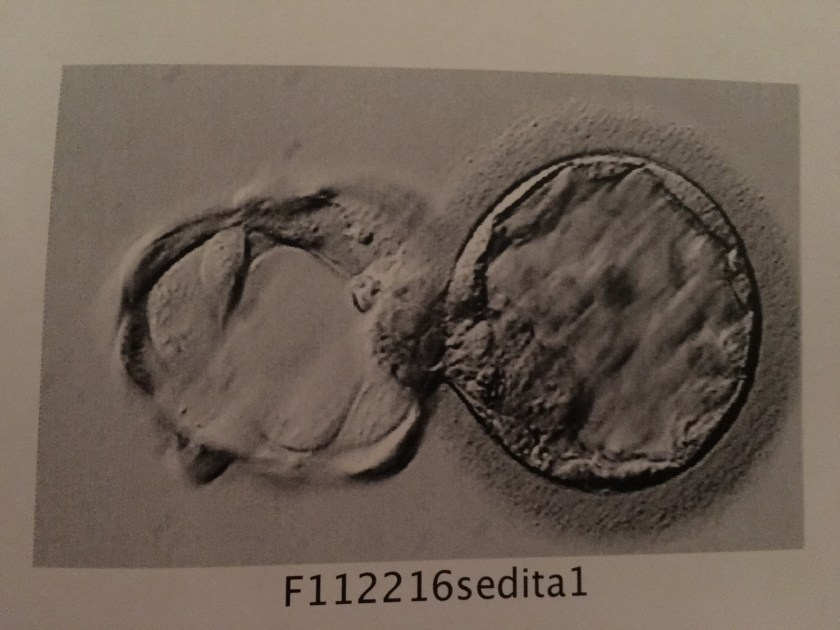 Photo of our embryo in its blastocyst stage