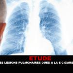 ÉTUDE : Des lésions pulmonaires dues à la e-cigarette ?