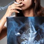 TOBACCO: פולמונולוגים מזהירים את הנשים לגבי הסיכון ל- COPD