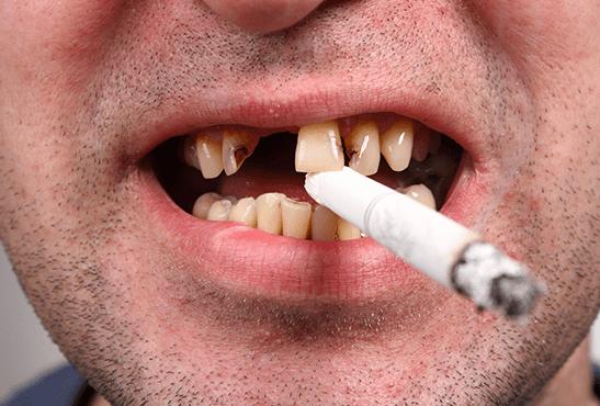SANTE : Jusqu'a quel point le tabagisme affecte votre dentition ?