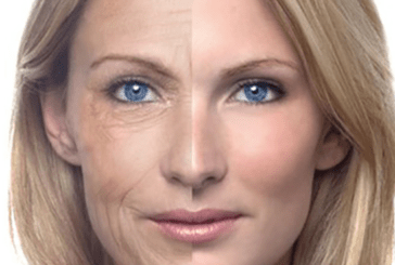 HEALTH: The harmful effect of smoking on your skin!