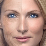 SANTE : L'effet néfaste du tabagisme sur votre peau !