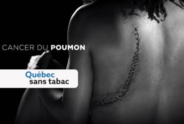 קנדה: קמפיין פרסום מציג את הנזק של עישון.