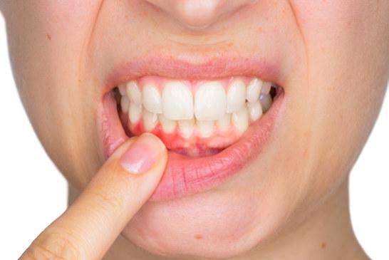 בריאות: האם אדישות מהווה סיכון לבריאות הפה שלך?