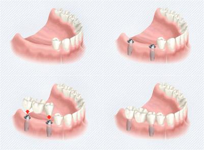 Implantant