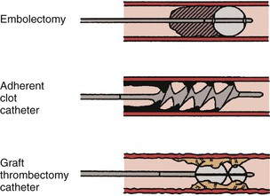 Graft Thrombectomy at Dialysis Centre in Bangalore