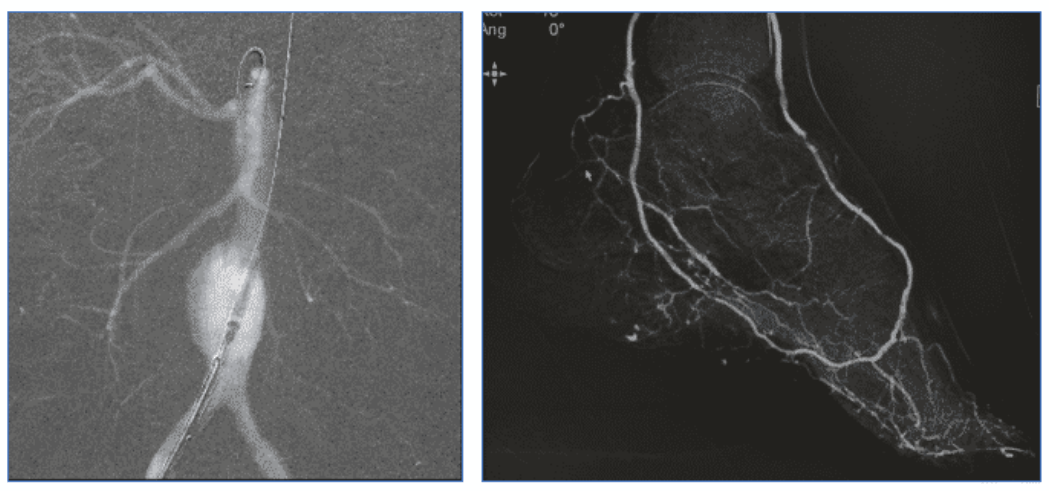 CO2 Used in Abdominal Aortic Aneurysm Surgery