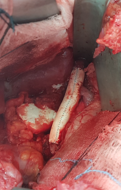 Tumor And Blood Vessel Removed And Replaced With A Graft