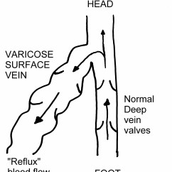 Veins In The Foot Diagram Briggs And Stratton Ohv Engine Parts Varicose Vascular Society Normal Rely On Valves To Keep Blood Moving Upwards These Do Not Function Flow Of Is Slow Or Even Reversed