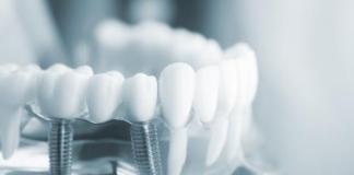 IK Investment Partners übernimmt Spezialisten für Medizintechnik